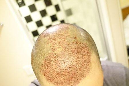 【植毛手術当日~3日目までの経過】手術の痛みって本当にないの?