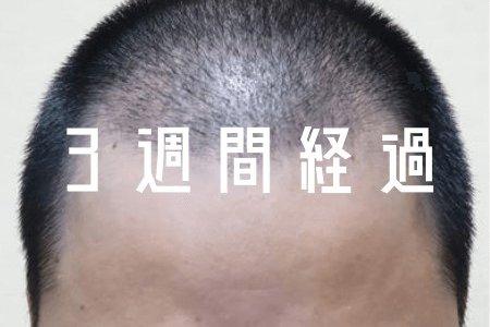 【自毛植毛 3週間経過】画像 折れ曲がった毛の正体