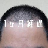 【自毛植毛 1ヶ月経過】 頭頂部・つむじ周りが気になる