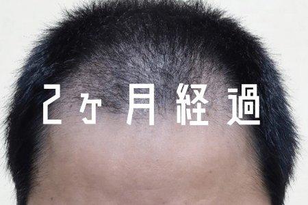 【自毛植毛 2ヶ月経過】 FUEの後頭部ボリュームはそこまで気にならないぞ