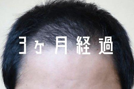 【自毛植毛3ヶ月経過】 毛のう炎もなくなり少し期待がでてきた
