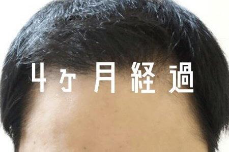 【自毛植毛4ヶ月経過】 植毛したあとの移植毛には2タイプある