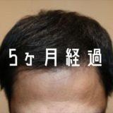 【自毛植毛5ヶ月経過】 伸びないチクチクした移植毛について