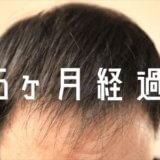 【自毛植毛6ヶ月経過】一時的な抜け毛がありました
