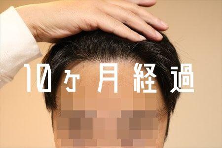 【自毛植毛10ヶ月経過】