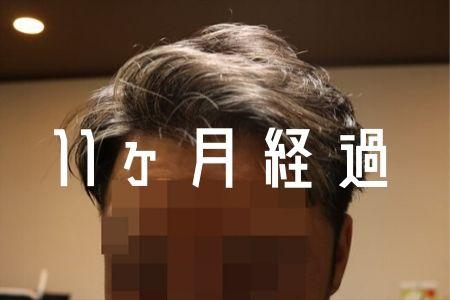 【自毛植毛11ヶ月経過】セルフでヘアカラーしたよ