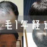【自毛植毛1年経過】薬なしで10ヶ月放置した結果がコチラ
